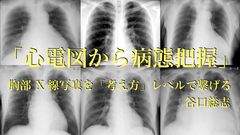 胸部X線写真を「考え方」レベルで繋げる